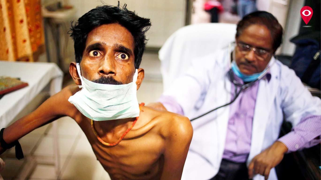 मुंबईबाहेरून येणारे क्षयरुग्ण घटले - महापालिकेचा दावा