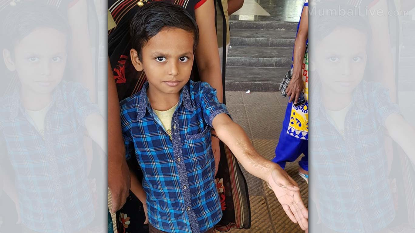 Doctors at Shatabdi Hospital botch up operation thrice; 7-year-old boy's hand remains twisted