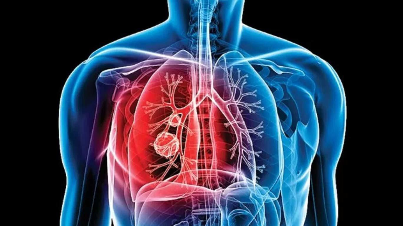सरकारी 'मर्म' रखेगा टीबी के मरीजों का ध्यान