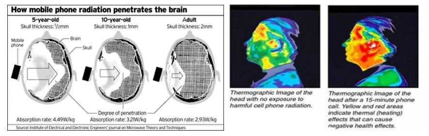 Are mobile phones damaging your ears?