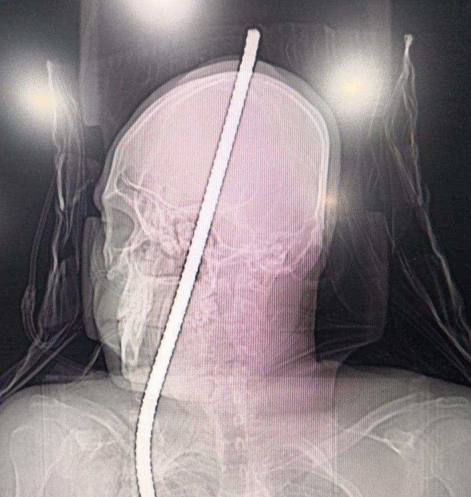 छातीत घुसलेली सळी डोक्यातून बाहेर पडली, मजुराला वाचवण्यात झेन रुग्णालयाला यश