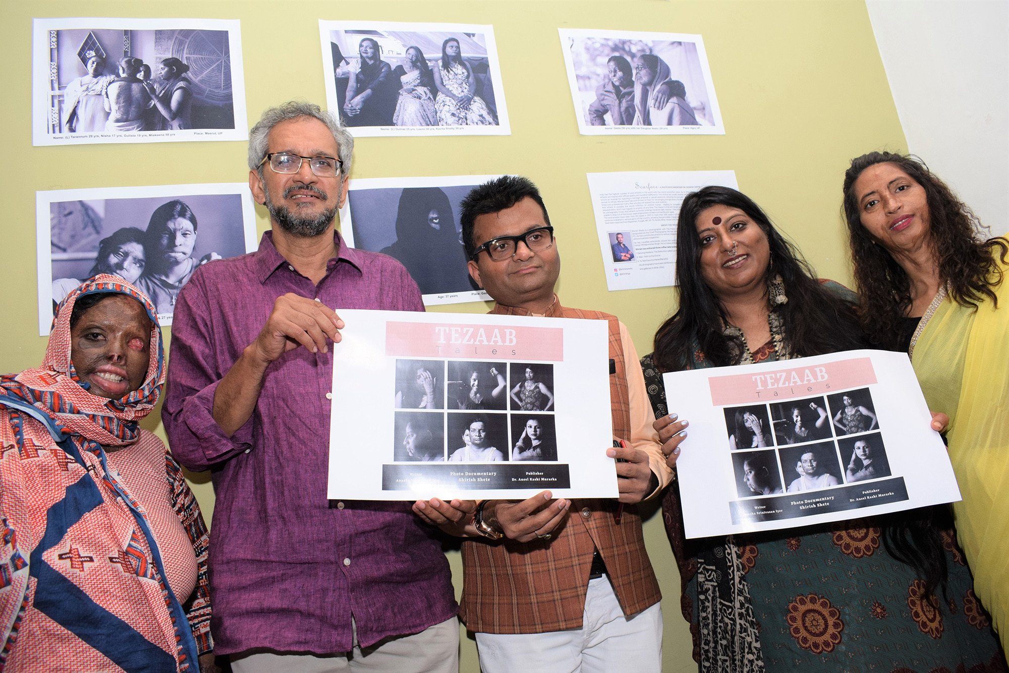 Scarface: Shirish Shete's photo documentary on Acid Survivors will give you goosebumps