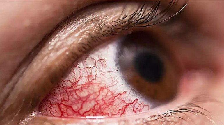 म्युकरमायकोसिसमुळं मुंबईत ३ लहान मुलांचे डोळे काढावे लागले