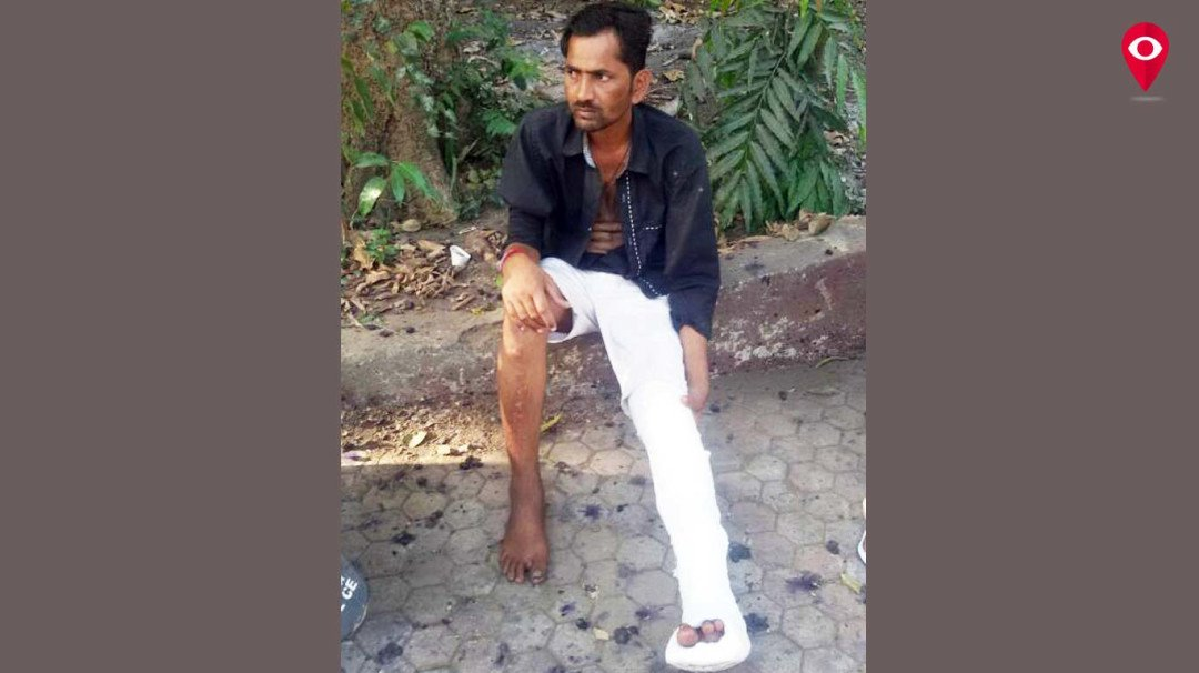 Bar Manager thrashes auto rickshaw driver leaving him badly injured