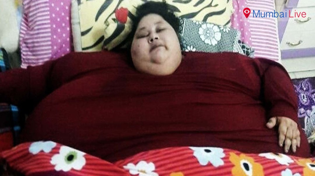 Surgery successful on Emam Ahmed; sheds 120 kgs