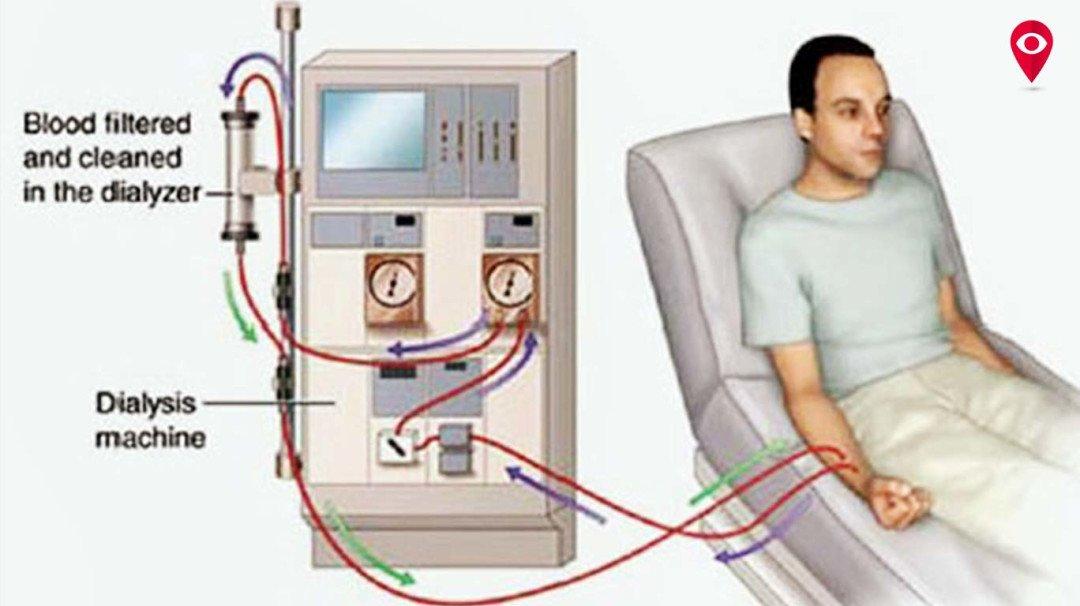 आखिर कब शुरू होगा जोगेश्वरी ट्रॉमा केयर हॉस्पिटल में 'हेमोडायलिसिस केंद्र'
