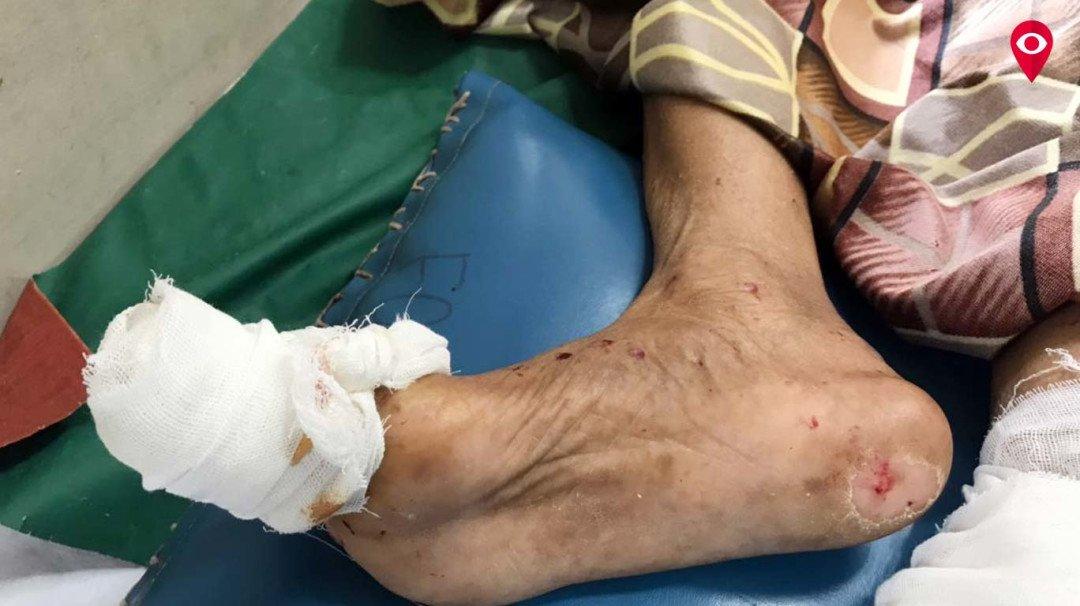 कांदिवली के शताब्दी अस्पताल में चूहों का आतंक, दो महिलाओं को बनाया शिकार