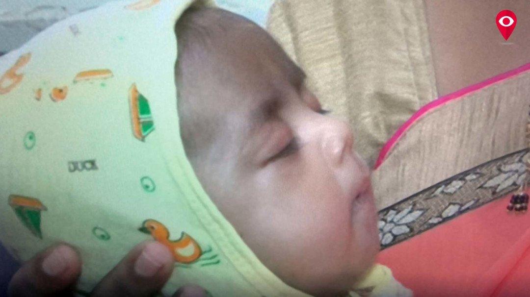 4 महीने की बच्ची, 6 हार्ट अटैक,12 सर्जरी फिर भी सही सलामत