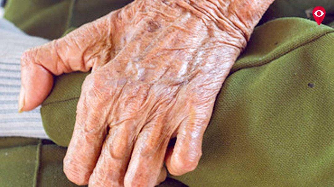 मुंबई में 75 फिसदी कुष्ठ रोगी!