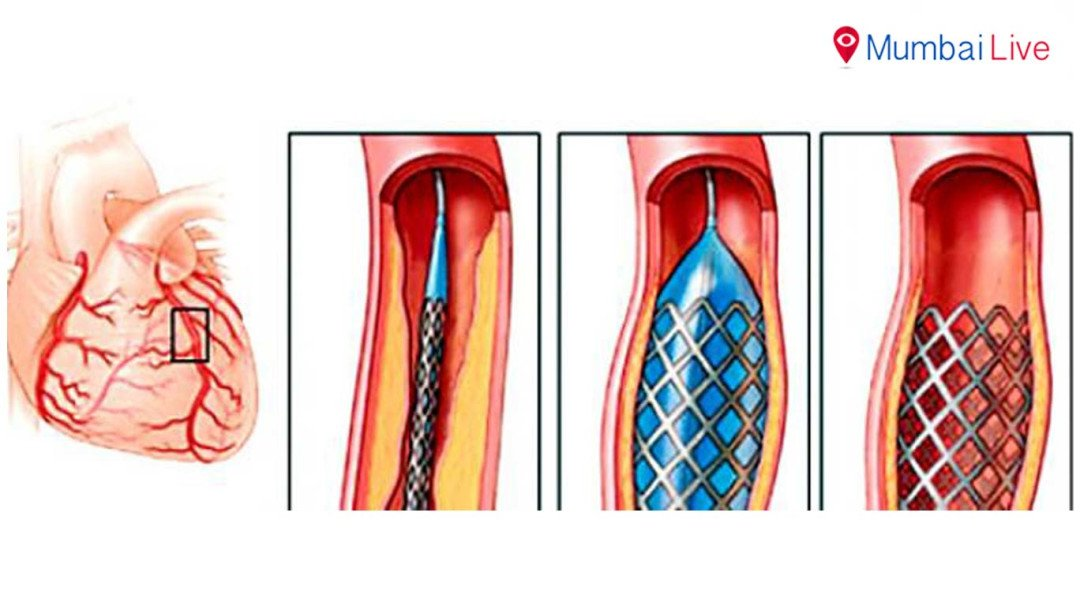 Thirty complaints against overpriced stents, many from Mumbai