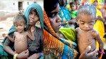 20 फीसदी बच्चे कुपोषण के शिकार