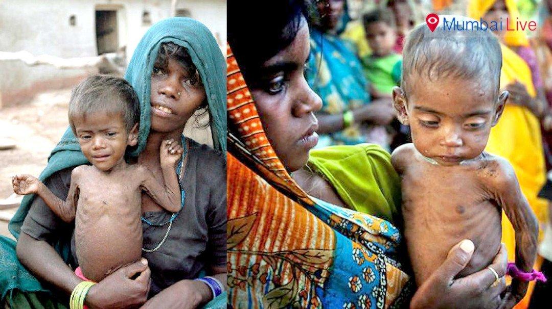 मुंबईत 20 टक्के बालकं कुपोषित