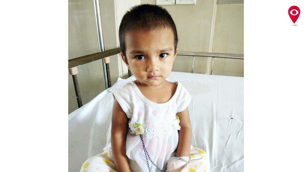 Docs remove locket lodged in kid's throat sans surgery