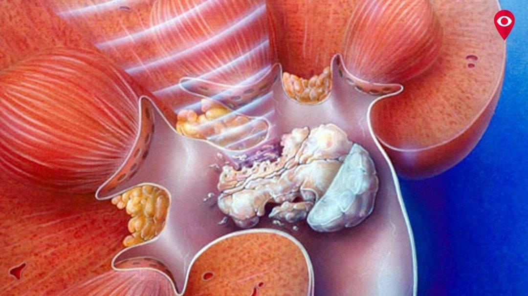 उन्हाळ्यामुळे किडनी स्टोन आणि पोटाच्या विकारांमध्ये वाढ