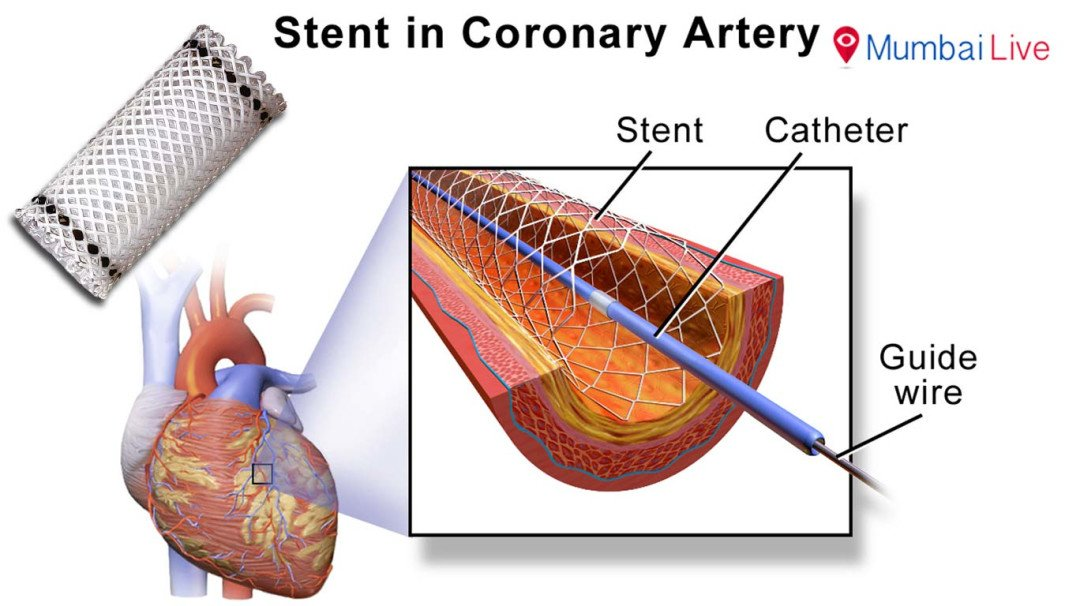 Hospitals grapple with artificial scarcity of stents, angioplasties on hold