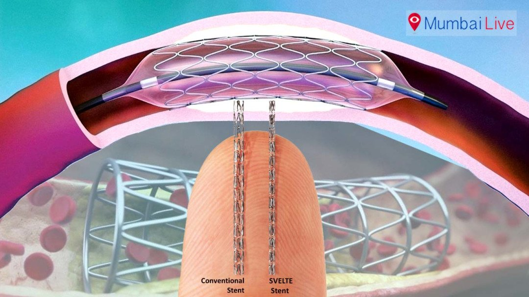 Are Mumbai hospitals fleecing patients on stent prices?