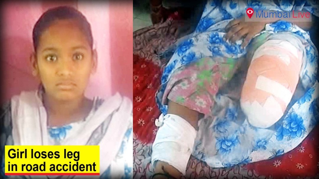 Schoolgirl loses leg in hit-and-run case