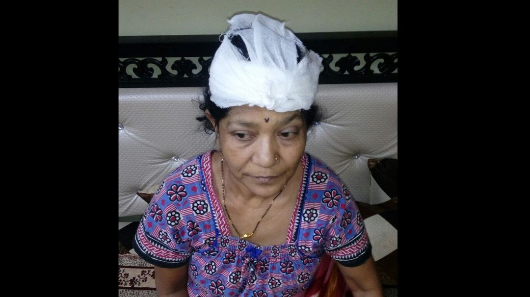Slab falls on a woman's head at Andheri station, receives 27 stitches